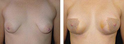 Tuberous Breasts Dr Tavakoli
