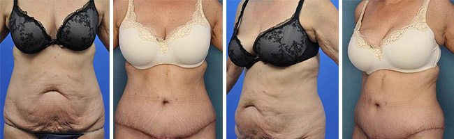 Abdominoplasty - Dr Richard Bloom