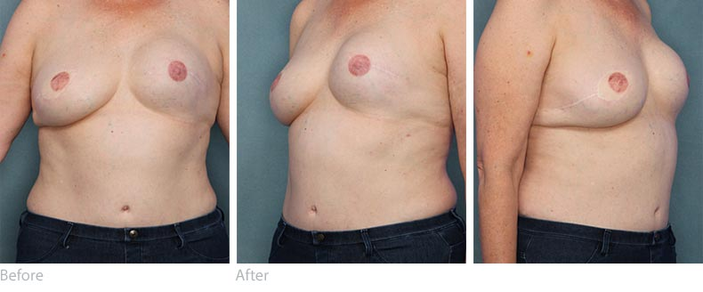 Kim Taylor Breast Reconstruction