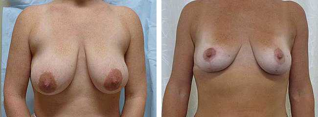 Dean Trotter Breast Reduction