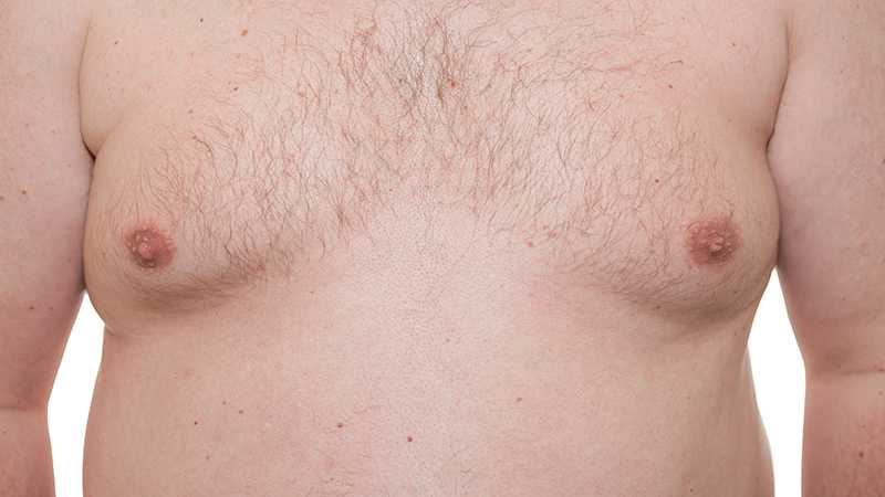 Dr Timothy Cooper: Male breast reduction