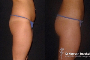 Dr Tavakoli's patient had 480mls of fat transferred to each buttock cheek