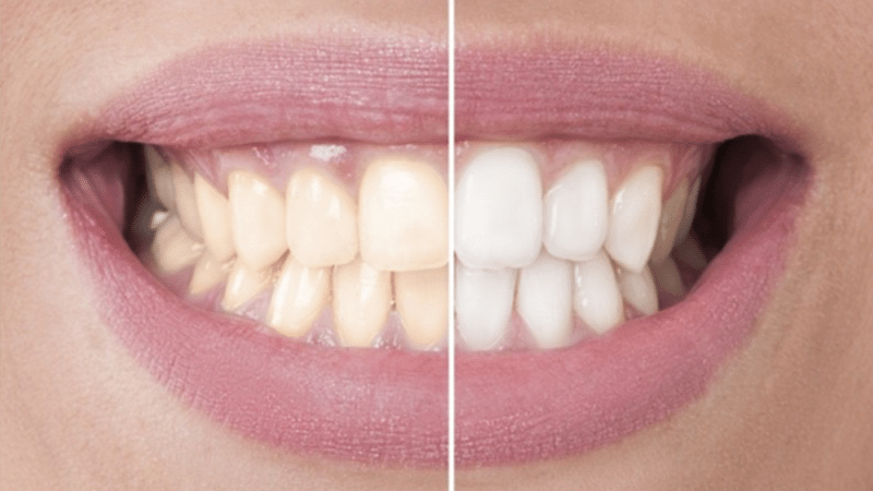 Do you need to go to a dentist for teeth whitening?
