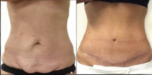 fully-tummy-tuck-dr-david-sharp