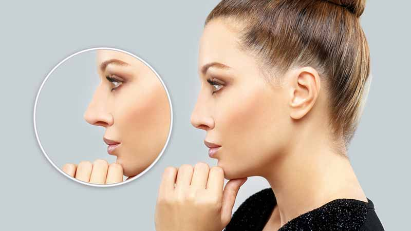 rhinoplasty-nose-surgerey