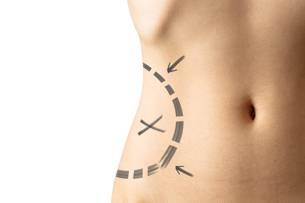 How liposculpture can improve your body shape and proportions