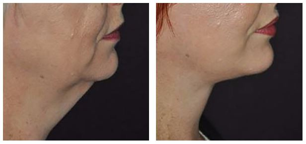 Would lower facelift and neck surgery make me look and feel younger?