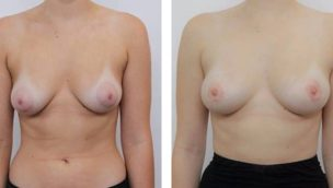 nipple surgery before and after