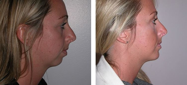 How chin implants can dramatically improve your appearance