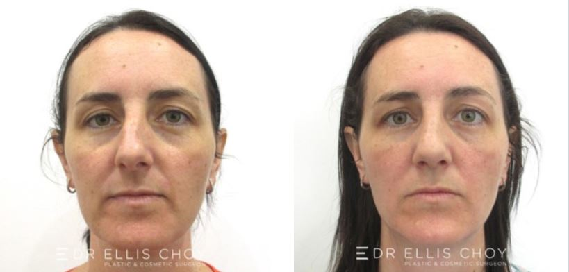 non-sugical rhinoplasty Dr Choy