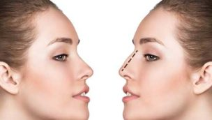 revision-rhinoplasty