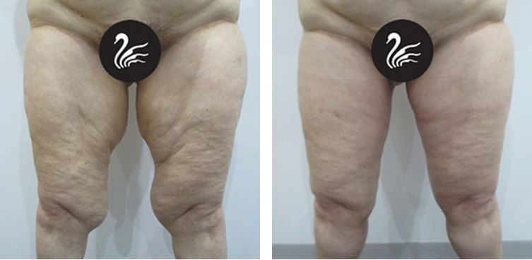 thigh reduction surgery before and after