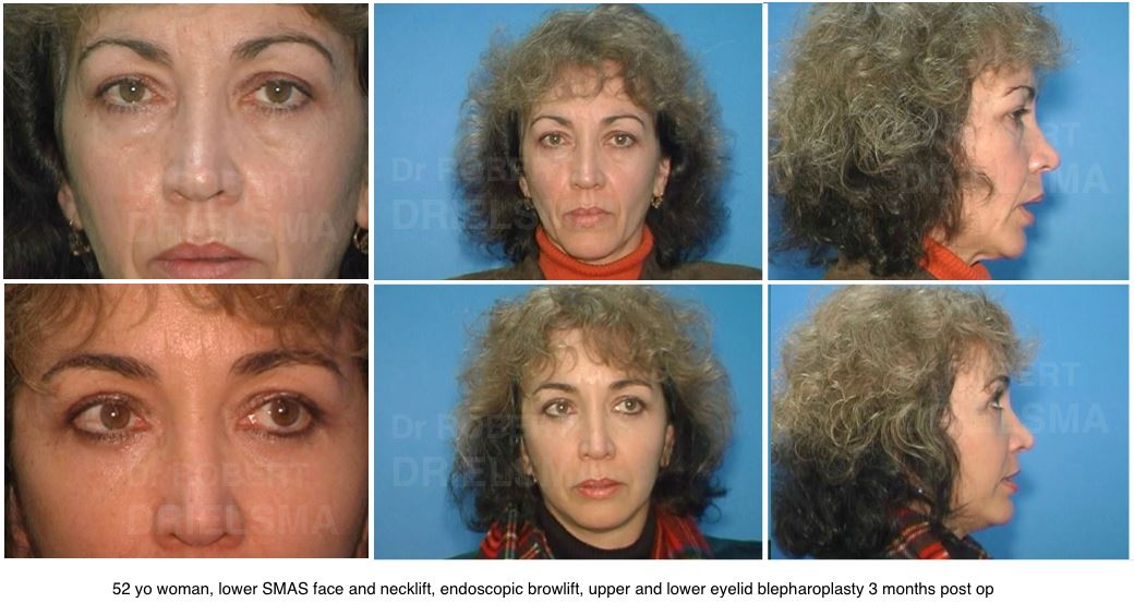 I want a facelift but don't want to look fake. Would SMAS facelift be a good option?