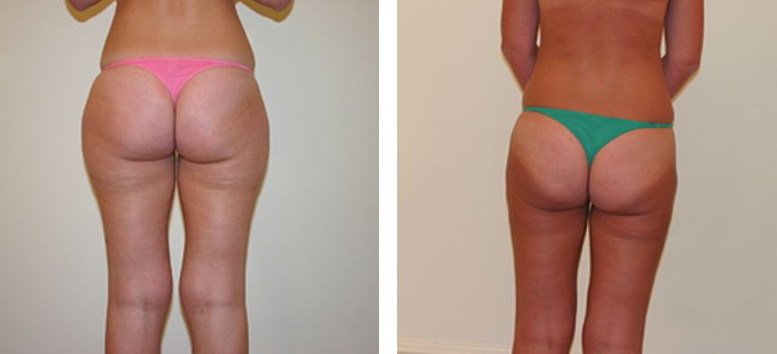 How tumescent liposuction can help you look your best