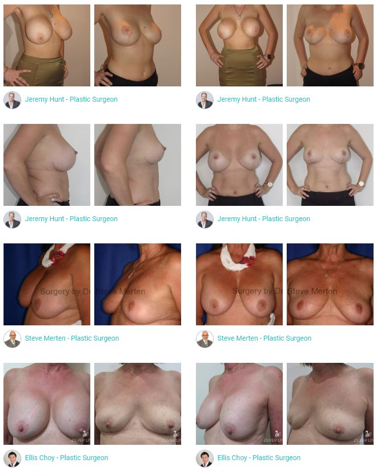 Before and after Photos Breast Implant Removal Surgeons