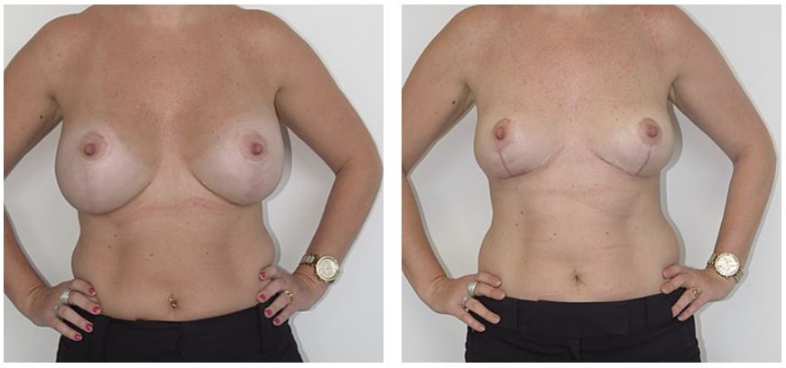 Breast Implant Removal before and after Jeremy Hunt