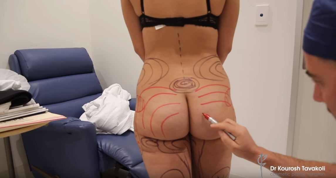 How a butt lift can give you a more defined and toned butt