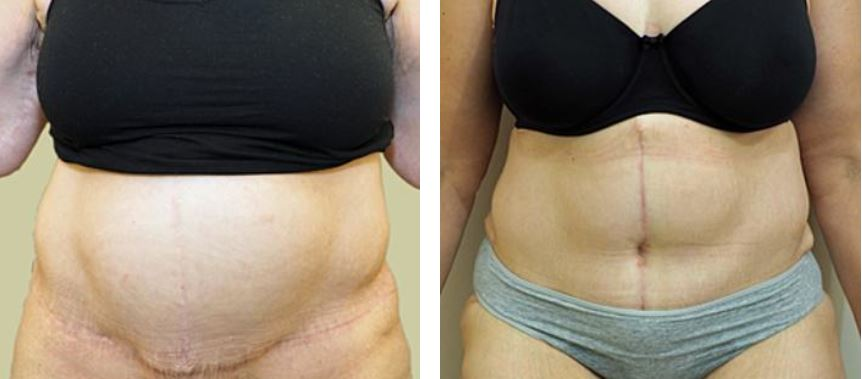 Tummy tuck revision Dr Sam Cunneen