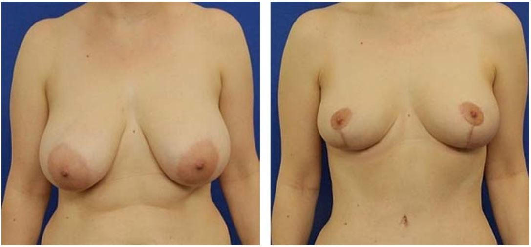 Is breast reconstruction right for you?