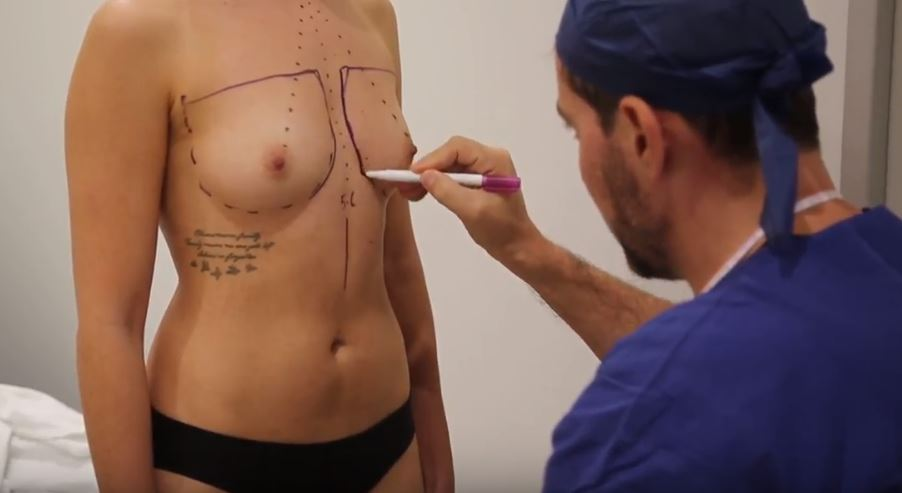 Dr Tavakoli Breast Augmentation marking out