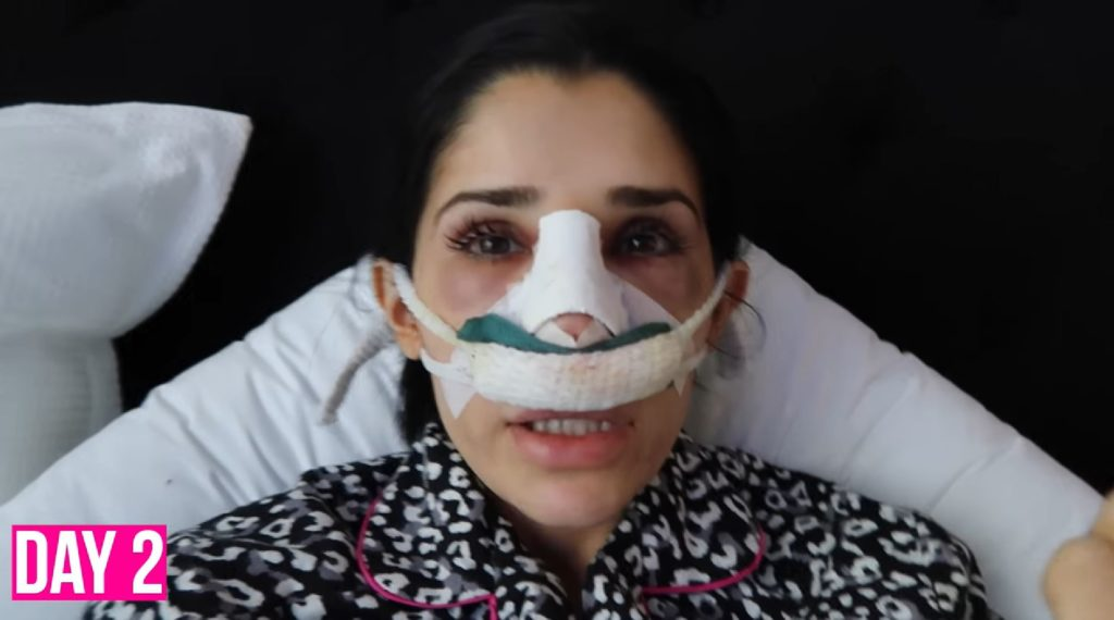 Amal day 2 nose job