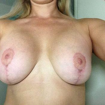 Thai boob job